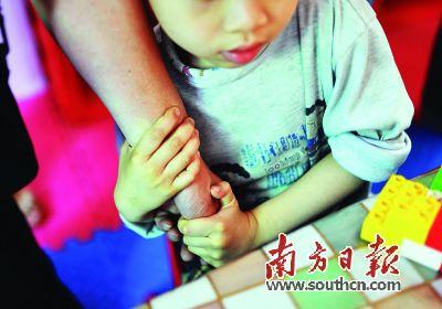 清远孤独症儿童接受治疗者